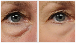 rejuvenating eye treatments