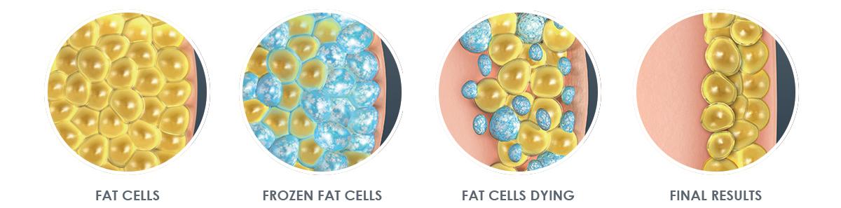 coolsculpting fat freezing diagram