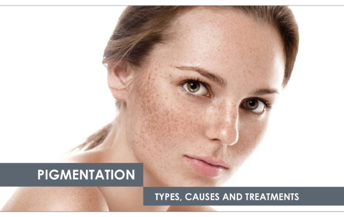 treating pigmentation at Just Skin Clinic