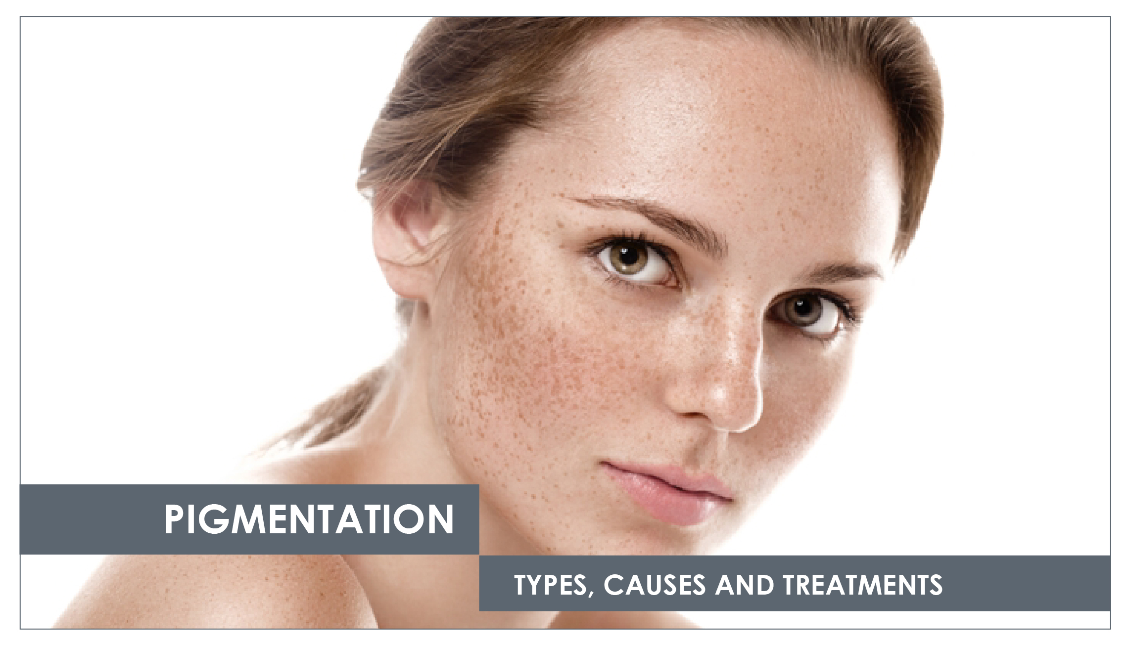 how to get rid of brown pigmentation on face